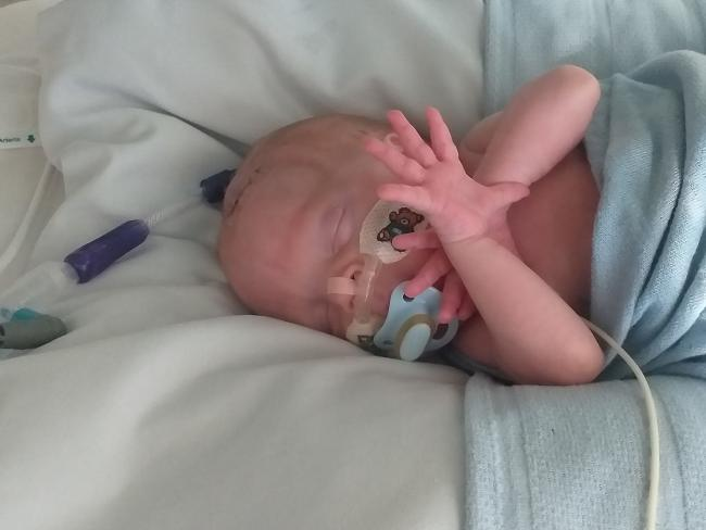 Toby Gleave who was born nearly three months early