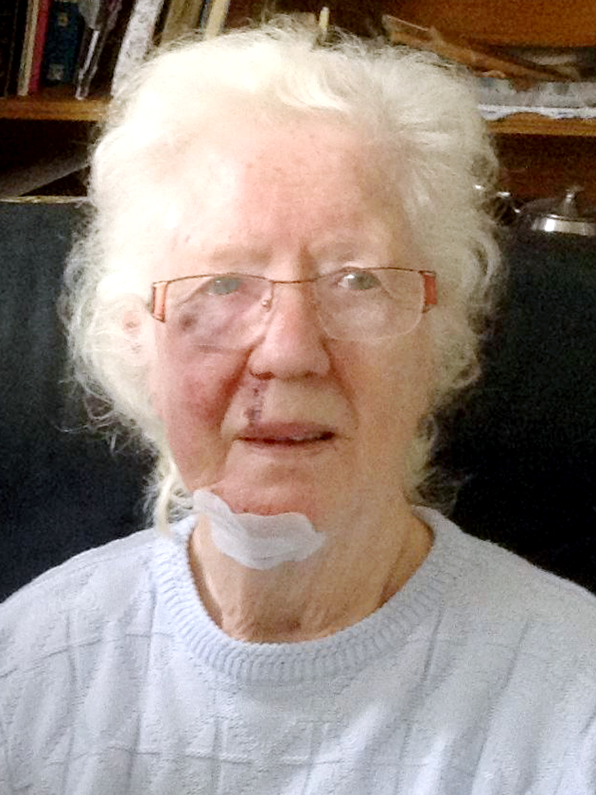Pensioner left bruised and terrified after robber steals her tablets