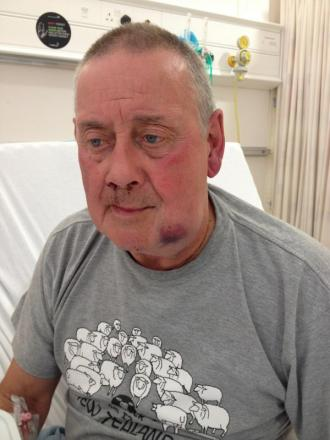 Peter Stringer, aged 71, who was punched in the face by a speeding driver after he signalled for him to slow down.