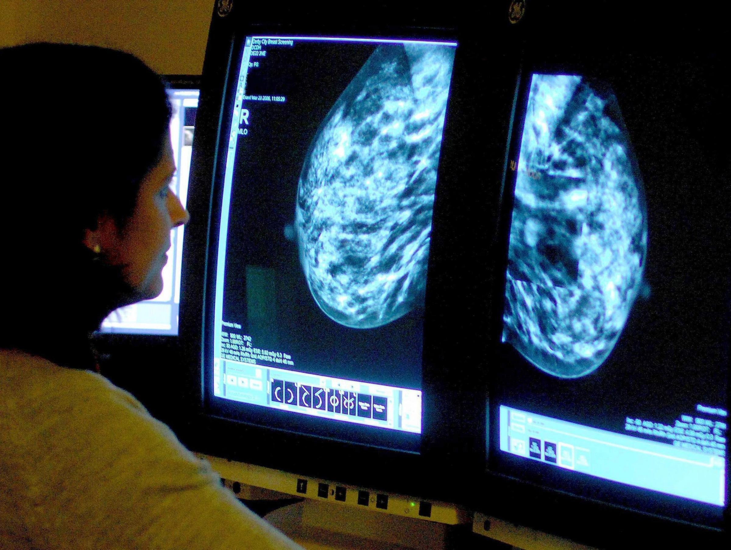 File photo dated 15/06/06 of a consultant analyzing a mammogram as an independent report on how hospital chiefs managed concerns over breast cancer surgery is due to be published. PRESS ASSOCIATION Photo. Issue date: Thursday December 19, 2013. Lawyer Sir